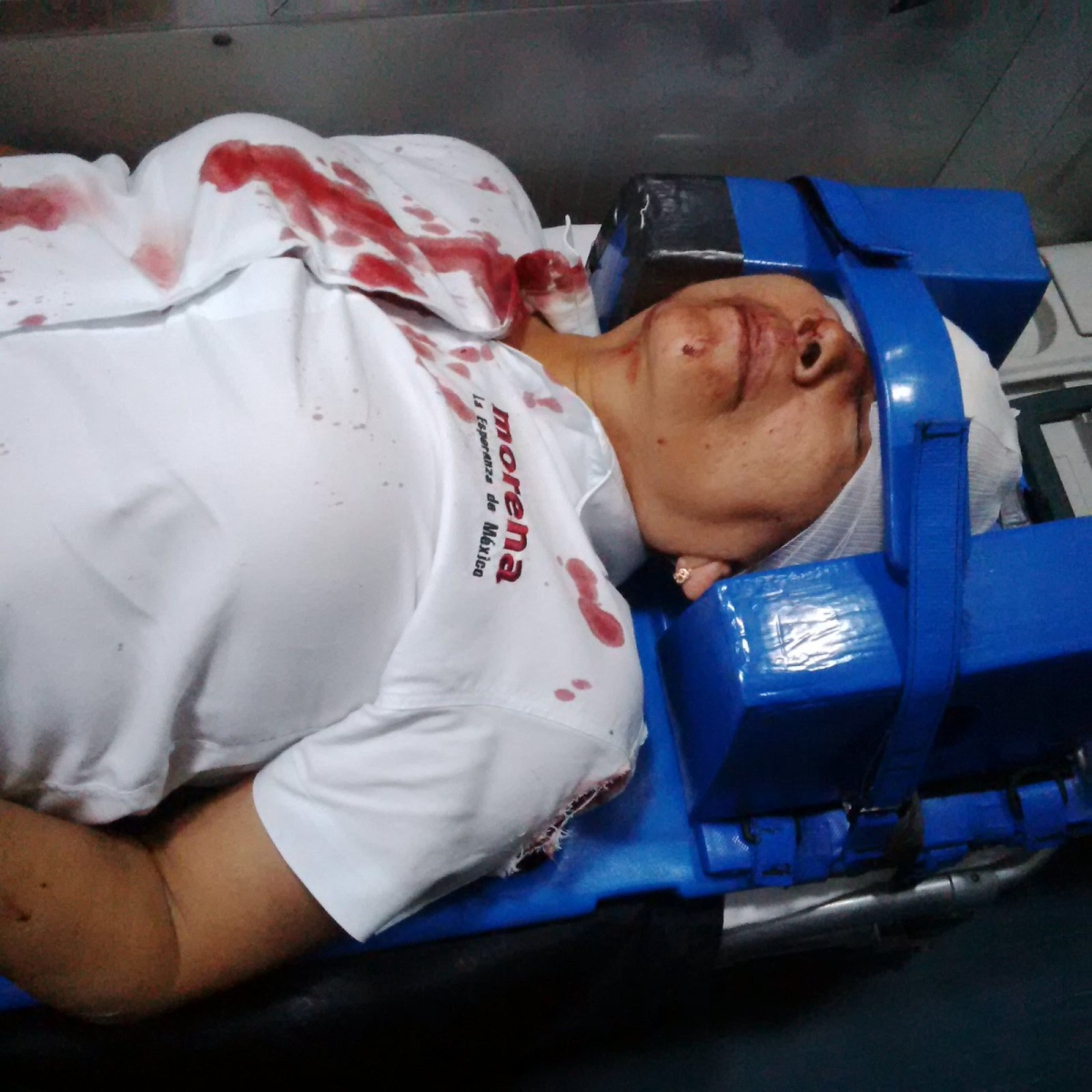 Diputada de MORENA sufre accidente automovilístico, en Guerrero